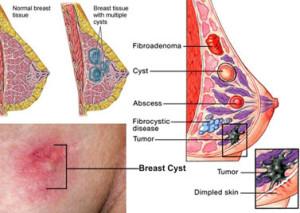 Breast-Clinic4